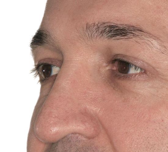 Augenlidstraffung Köln